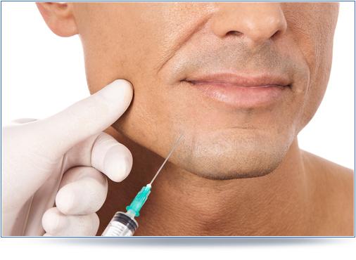 kwas hialuronowy dla mężczyzn
