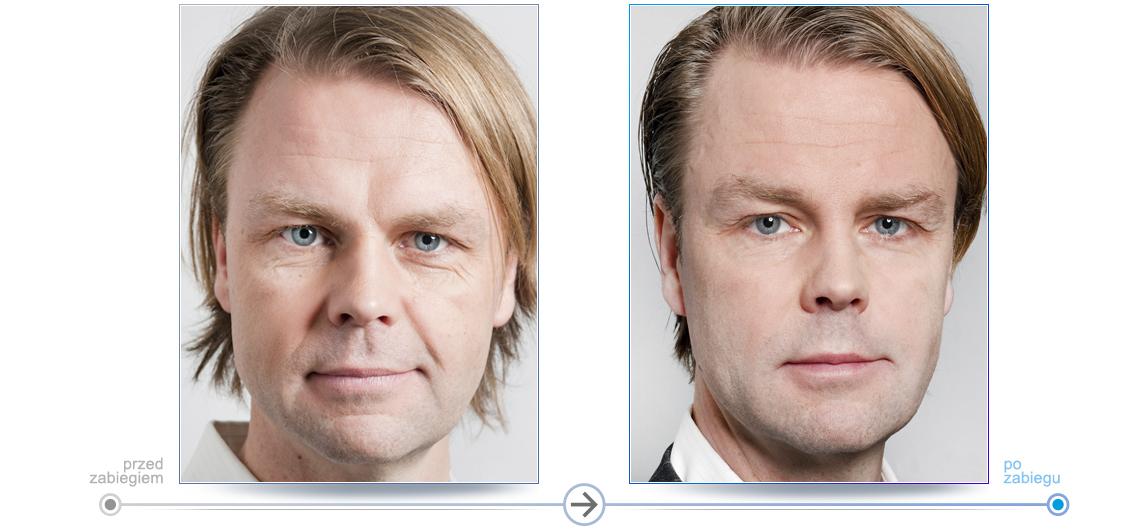 Pacjent Przed i po zabiegu. Medycyna estetyczna dla mężczyzn.