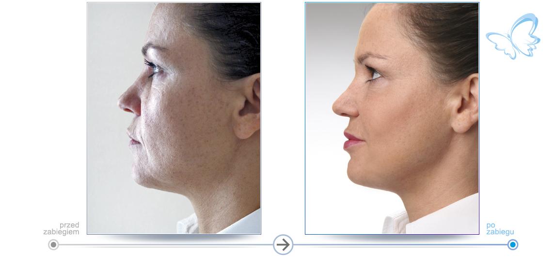 Przed i po - rozświetlona skóra pacjentki i wygładzone zmarszczki pozwalają pacjentce poczuć się młodszą.
