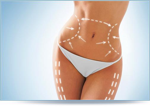 Karboxyterapia - redukcja blizn, usuwanie celulitu