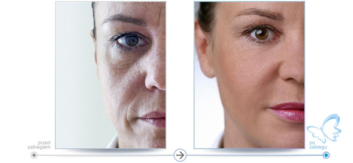 Przed i po - zobacz efekt zabiegów wykonywanych w salonach Mclinique. Wyrażna redukcja zmarszczek wokół oczu i ust. Korekta kształtu twarzy.